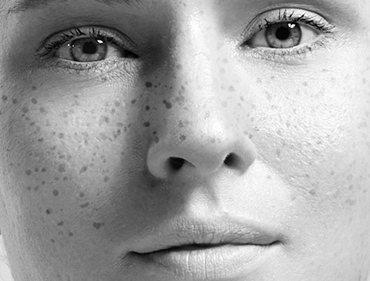 Ephelides freckles